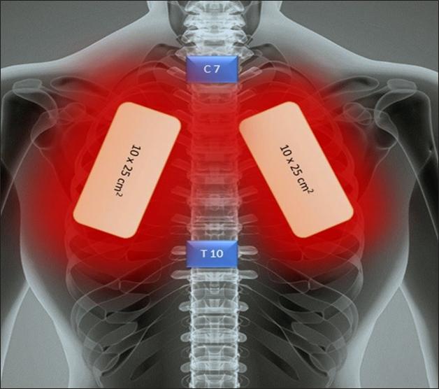 Leczenie PBMT u pacjenta z COVID-19